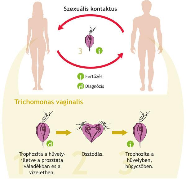 jobb gyógymód a parazitára pajzsmirigy trichinella