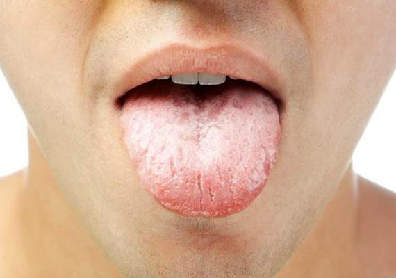 lepedék a nyelven, fehér szag a szájból