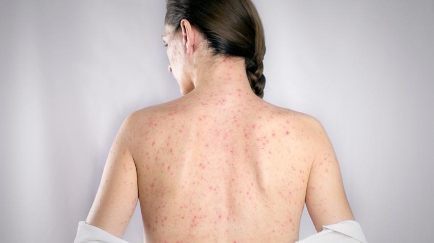 Húgyúti fertőzések tünetei és kezelése