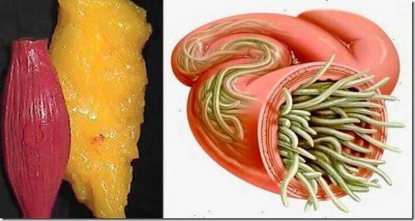 finomított terpentin a paraziták számára