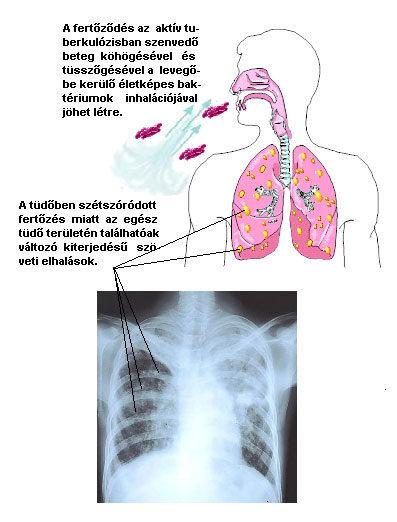 kerekféreg a tüdőben tünetek felnőtteknél)