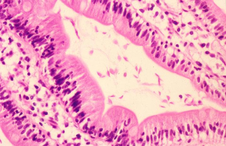 Giardia colon histology,