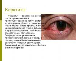 Száraz szem szindróma népi gyógymódok kezelése