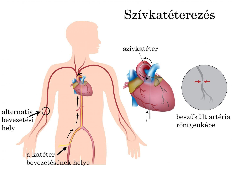 Érszűkület infarktus - Életmód Orvosi Központ