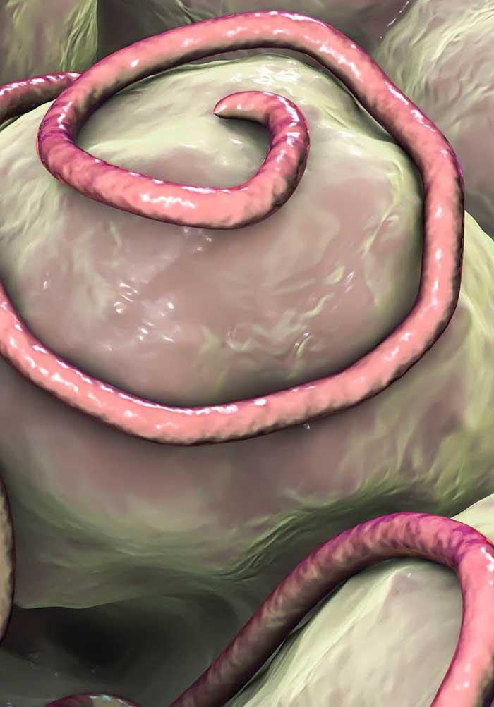 Ostorféreg-fertőzés