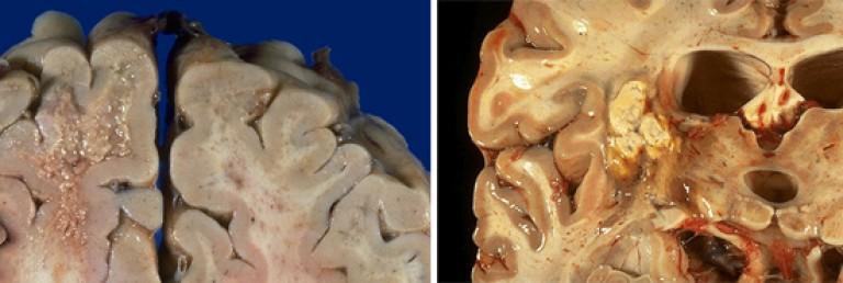helmintikus fertőzés gyermekek fogászati kezelésében