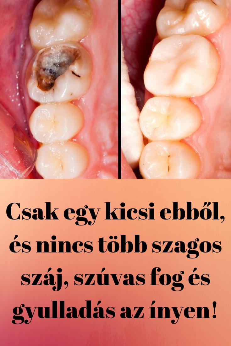 kicsi szájszag)