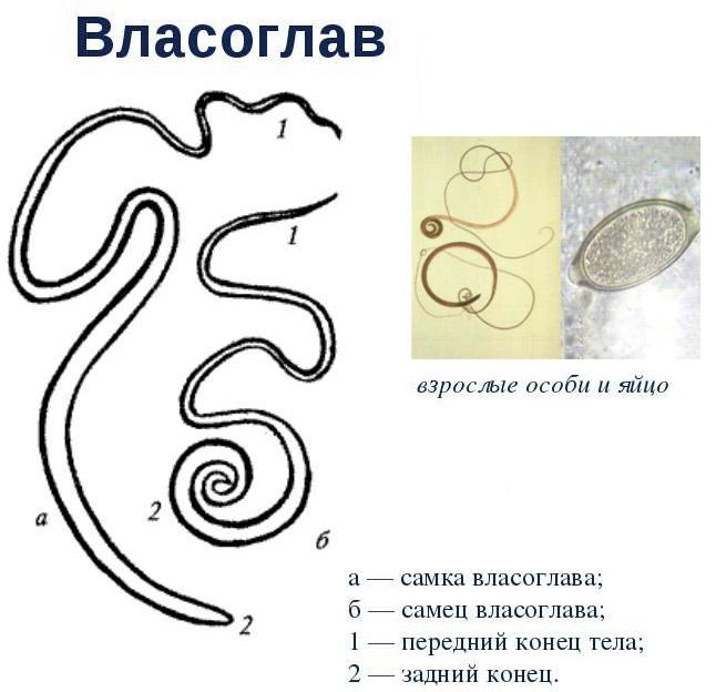 férgek és pinworms különbség)