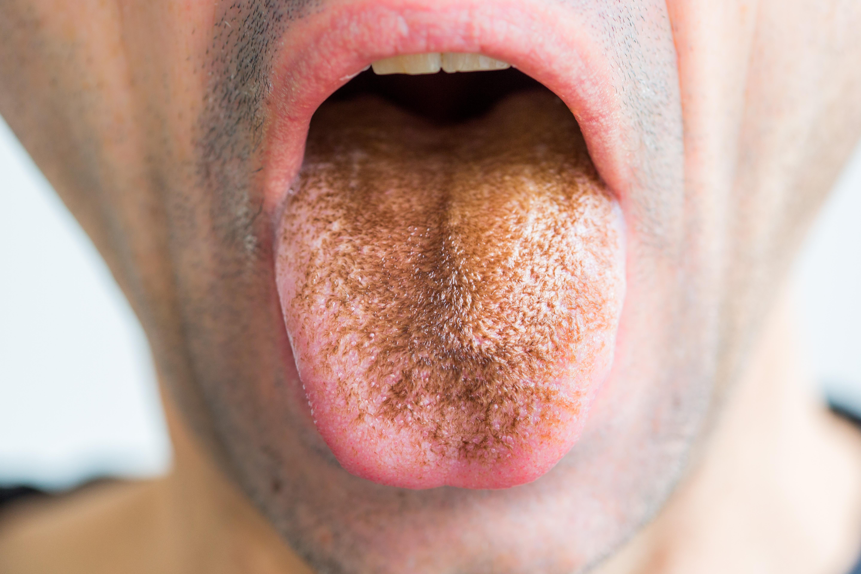 lepedék a nyelven, fehér szag a szájból)