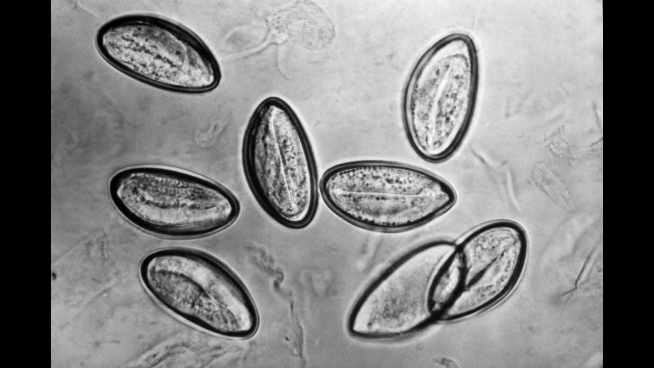 pinworms a pirantel után gyógyszerek a májban élő parazitákra