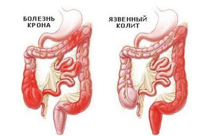 parazita fekélyes vastagbélgyulladás kezelésére)