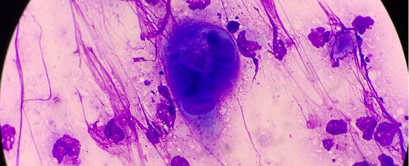 humán fertőzés horgoshernyó- fertőzéssel történik