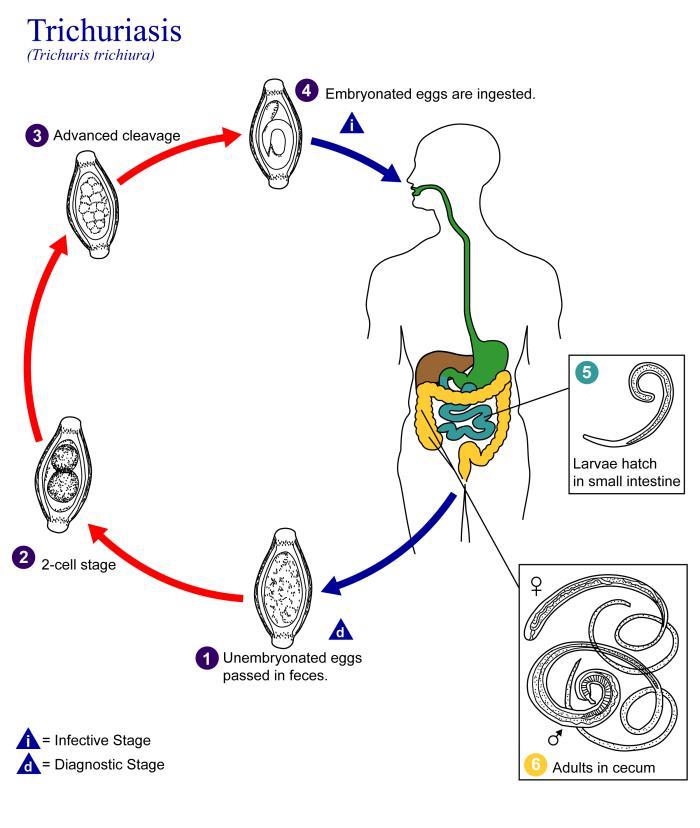 vajon a trichocephalosis fertőző e