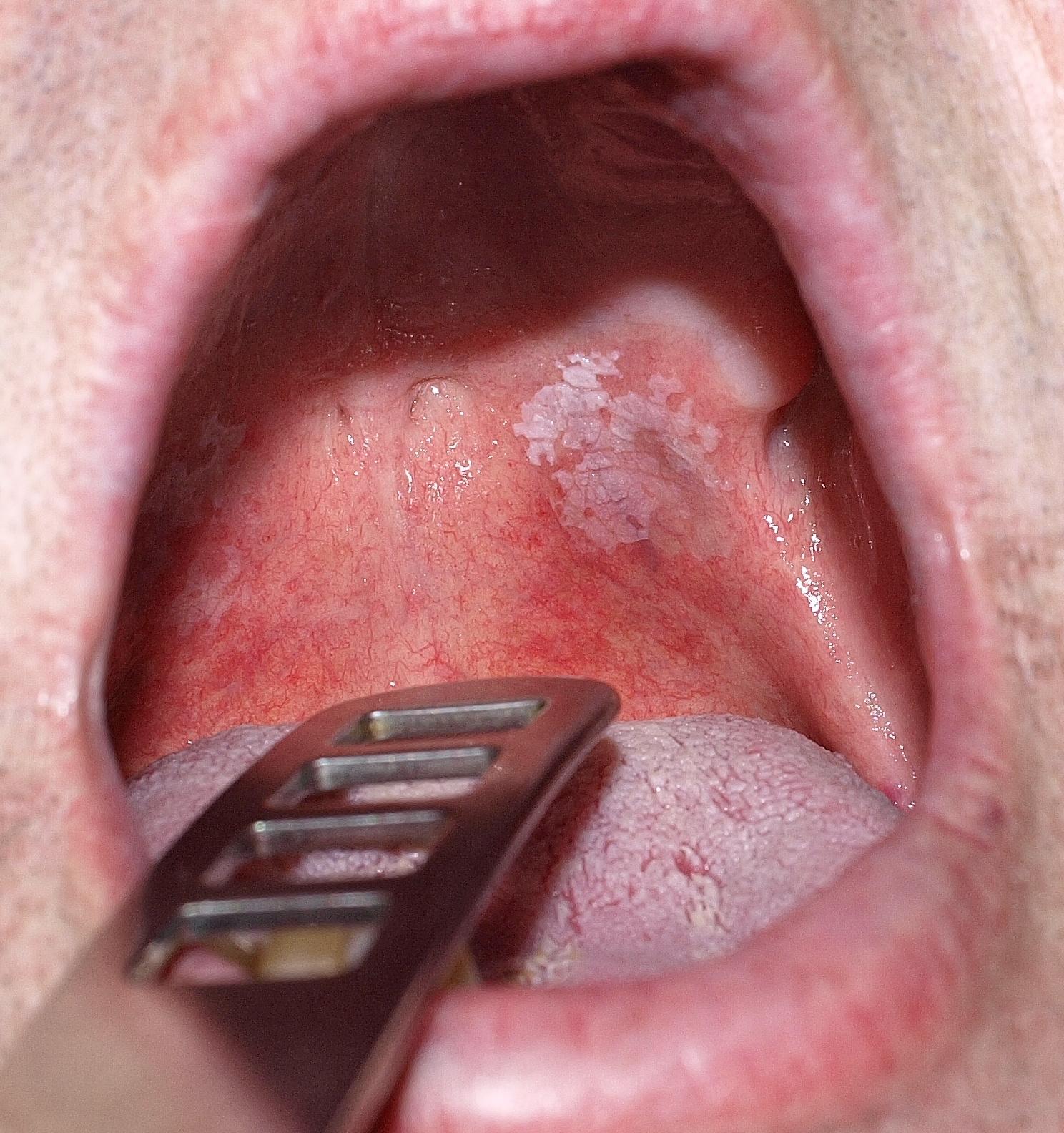 acetonszag jelei a szájból
