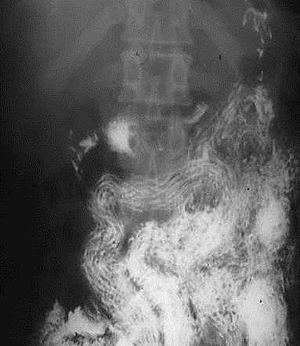 helminthiasis anaemia)