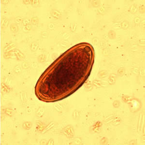 az enterobiosis
