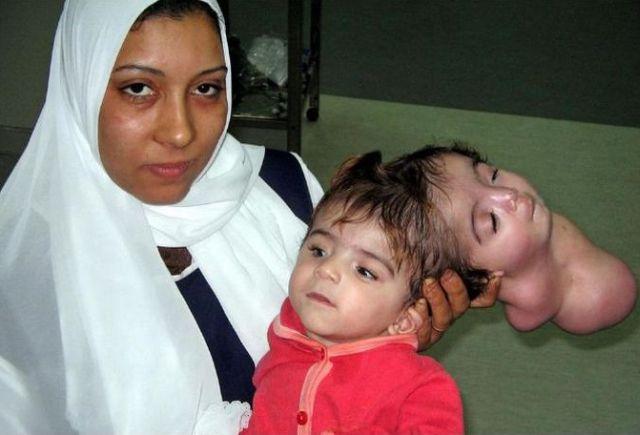 Durva képek: Így néz ki a baba, akinek gyomrában kifejlődött a kistestvére - Blikk