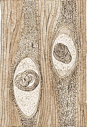 trichinella élő születés)