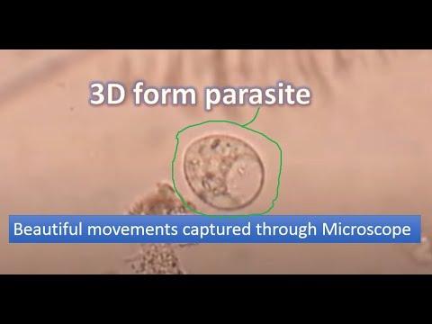 peroxid a rossz leheletért parazita tünetek az emberi test kezelésében