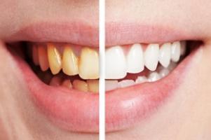 fogbetegségek | Kínai-medicina