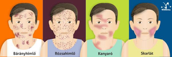 gyermekeknél ízületi fertőzés és kiütés)