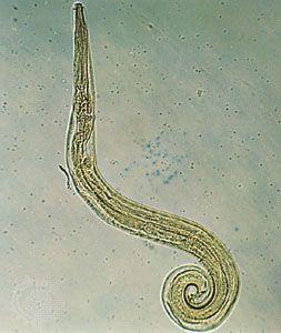a pinworm benne él)