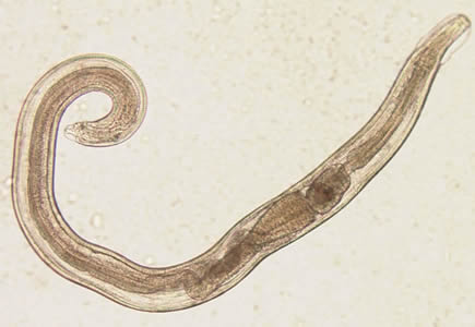 Az enterobiasis a pinworms