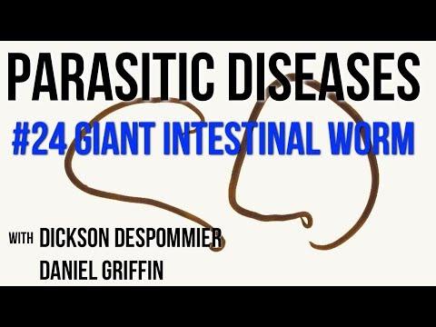 nézni paraziták a testben giardia bij honden symptomen