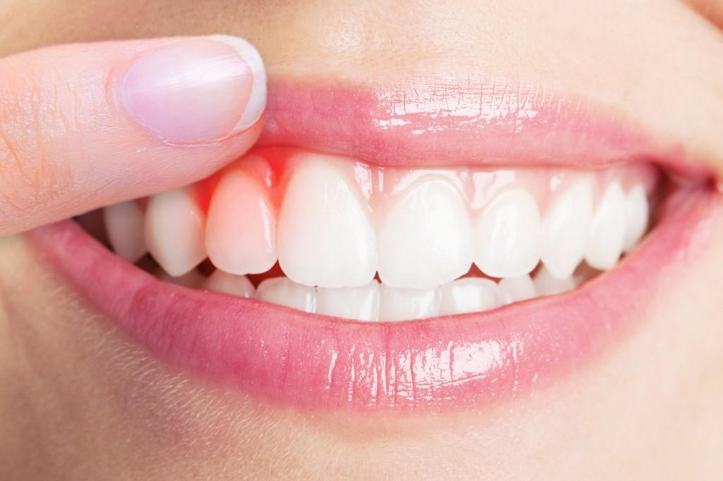 a parodontitis okozta rossz lehelet