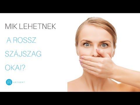a rossz lehelet megszabadulni a gyógymódoktól miért van kellemetlen szag a szájból