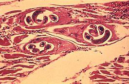 a Trichinella lárvák lokalizációja