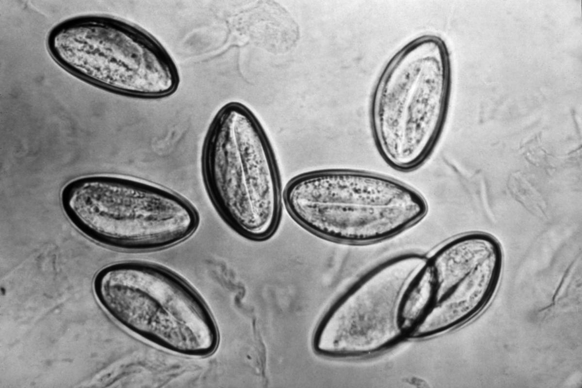 Ascaris pinworms fotókezelés