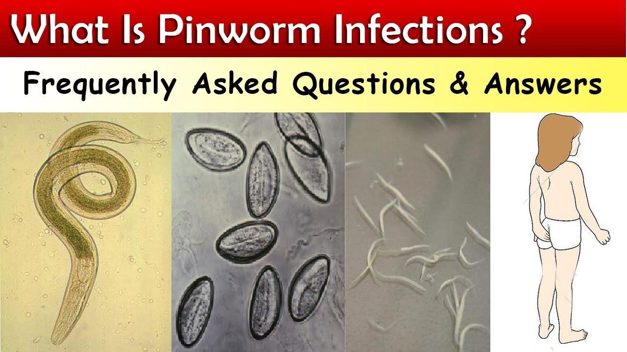 széklet a pinworm tojások számára