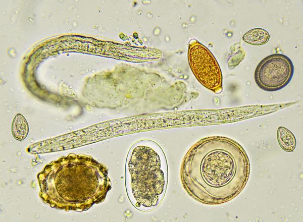 giardiasis ascariasis