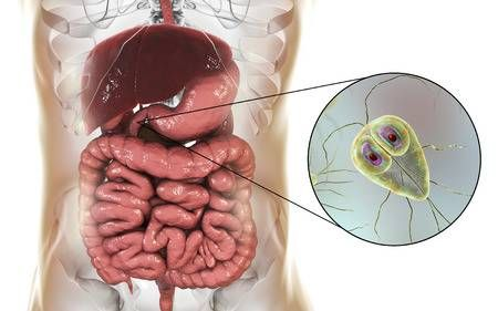 giardia disease