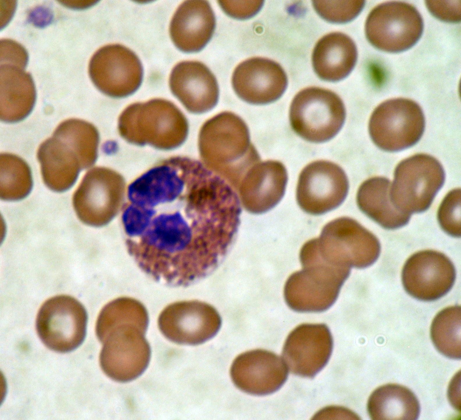 alacsony eozinofil paraziták