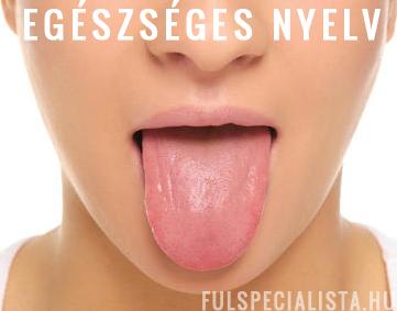 reggel a száj székletének szaga A helminthiasis megelőzést okoz