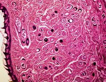 trichinosis Helix)