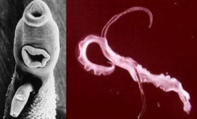 bél paraziták gyógyulnak