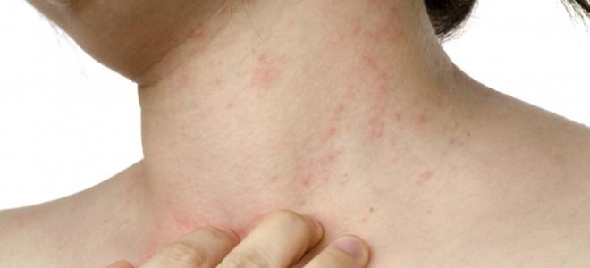 trichocephalosis kiütés a testön)