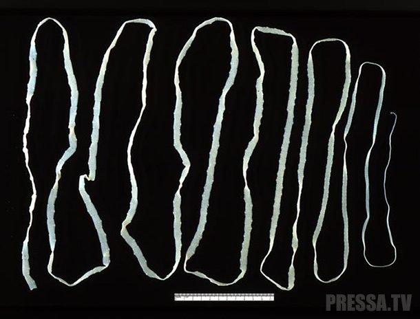 Finn hús: milyen betegségek okoznak parazitákat - Zöldségek