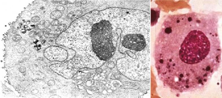 enterobiasis kezelési tabletták pinworms 3 éves