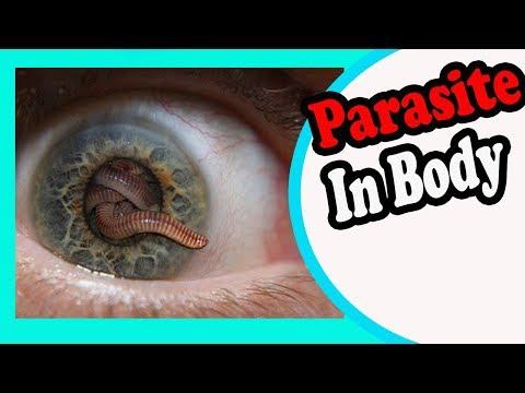 hogyan lehet gyorsan gyógyítani a gyermek férgeit minden a parazitákról és a kezelésekről