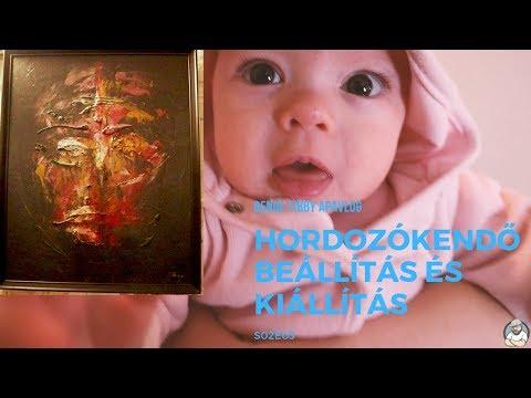 Gyermekek férgek kolera megelőzése - rays.hu