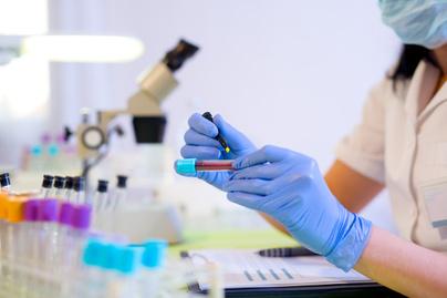 parazita tünetek az emberi test kezelésében