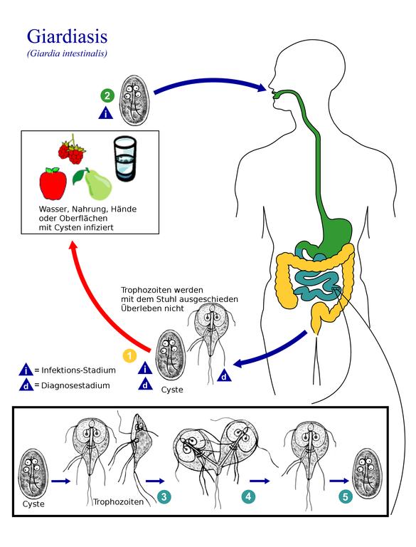mit jelent a giardiasis