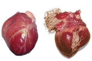 szivfergesseg emberben tünetei