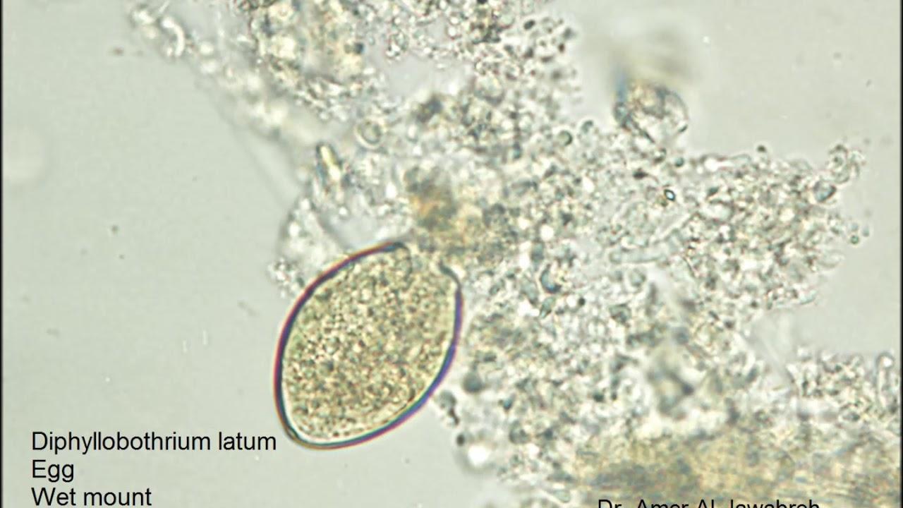 diphyllobothriasis krónikus vagy akut formája