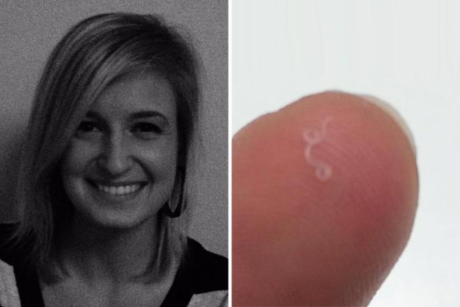 Horror: beteljesült minden fogorvos rémálma - férgek éltek a páciens ínyében - videó
