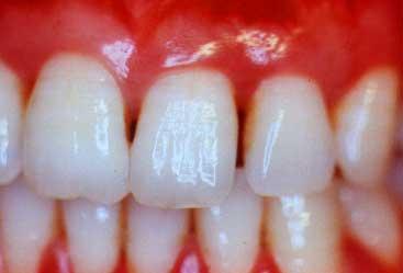Pszichoszomatika és a fogak